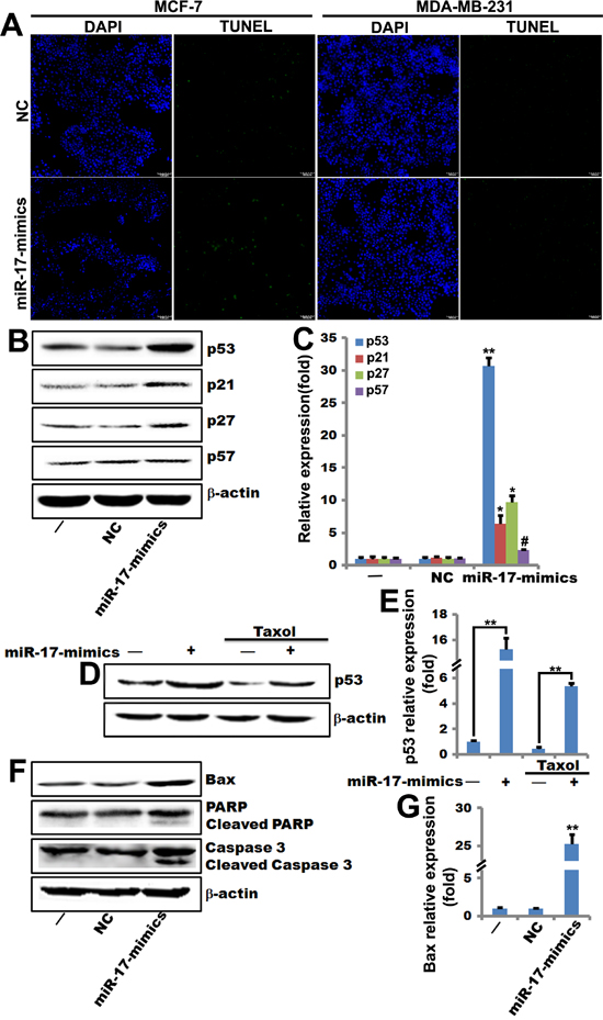 miR-17-5p increases p53 expression and sensitizes breast cancer cells to paclitaxel-induced apoptosis.