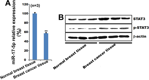 MiR-17-5p, STAT3, and pSTAT3 expression in breast cancer tissue.