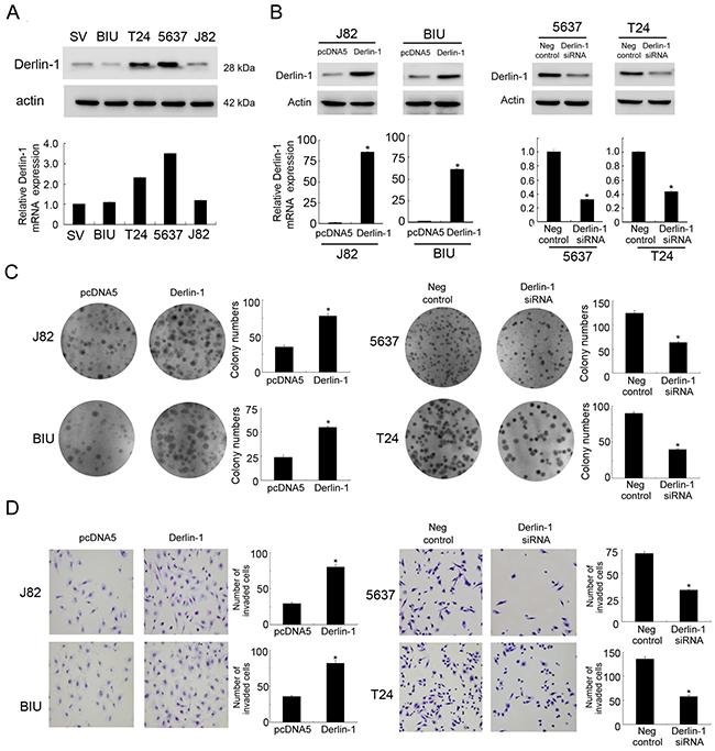 Derlin-1 overexpression in bladder cancer cell lines promotes proliferation and invasion.
