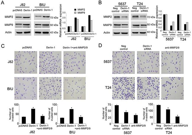 Derlin-1 regulates bladder invasion through MMP-2/9.
