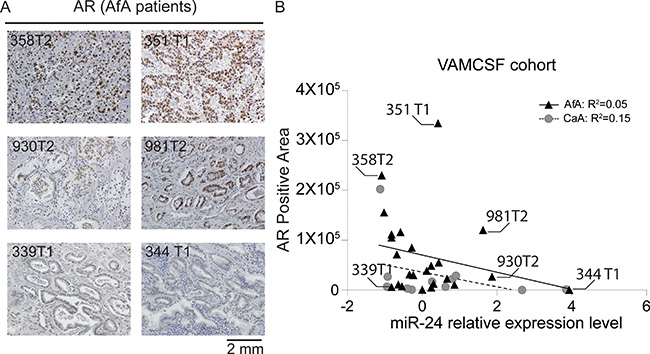 Analyses of AR protein expression in AfA PCa tissues.