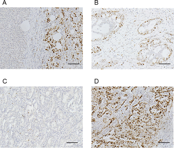 Immunohistochemical staining of karyopherin-α2 (KPNA2) in representative cholangiocarcinoma tissues.