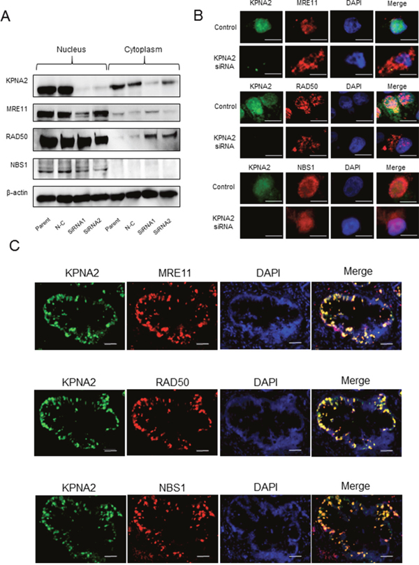 Karyopherin-α2 (KPNA2) and MRE11-RAD50-NBS1 (MRN) complex expression in cholangiocarcinoma cell lines and tissues.