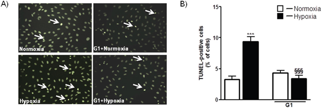 Effect of G1 on hypoxia-induced cell apoptosis.