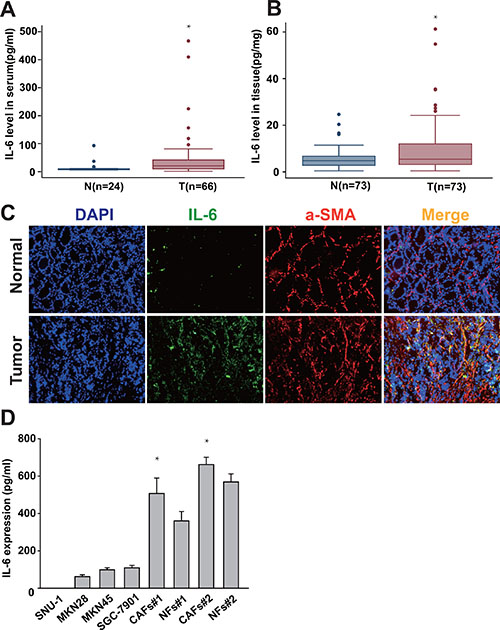 IL-6 is highly expressed in gastric CAFs.