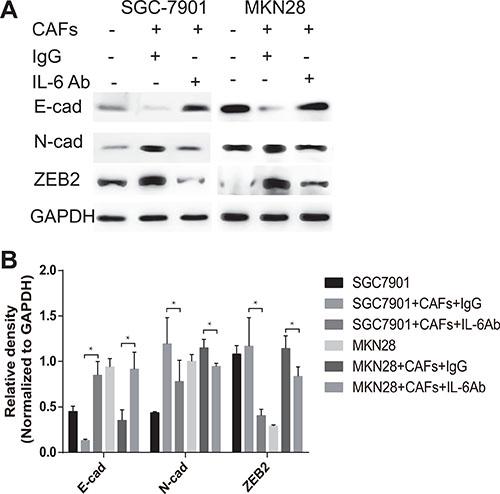 CAFs promote EMT of gastric cancer cells via the secretion of IL-6.