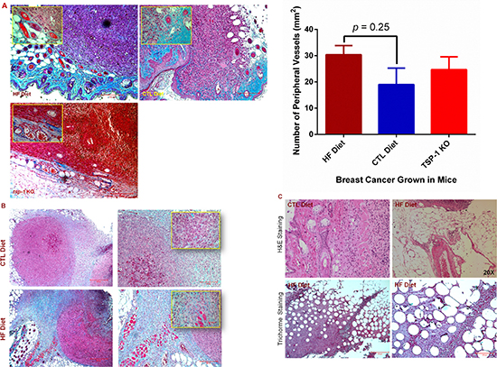 Diet-induced obesity promotes tumor angiogenic and metastatic potential.