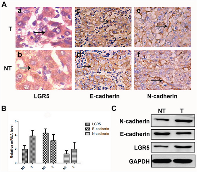 Expressions of LGR5, E-cadherin, and N-cadhe in HCC samples.