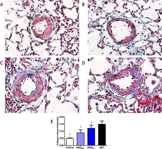 Effects of RDN on MCT-induced pulmonary vascular fibrosis histological section of pulmonary vascular.