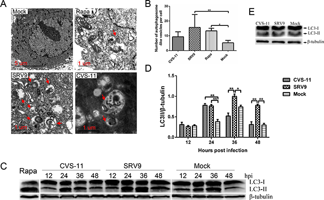 RABV infection induces autophagosome accumulation in NA cells.