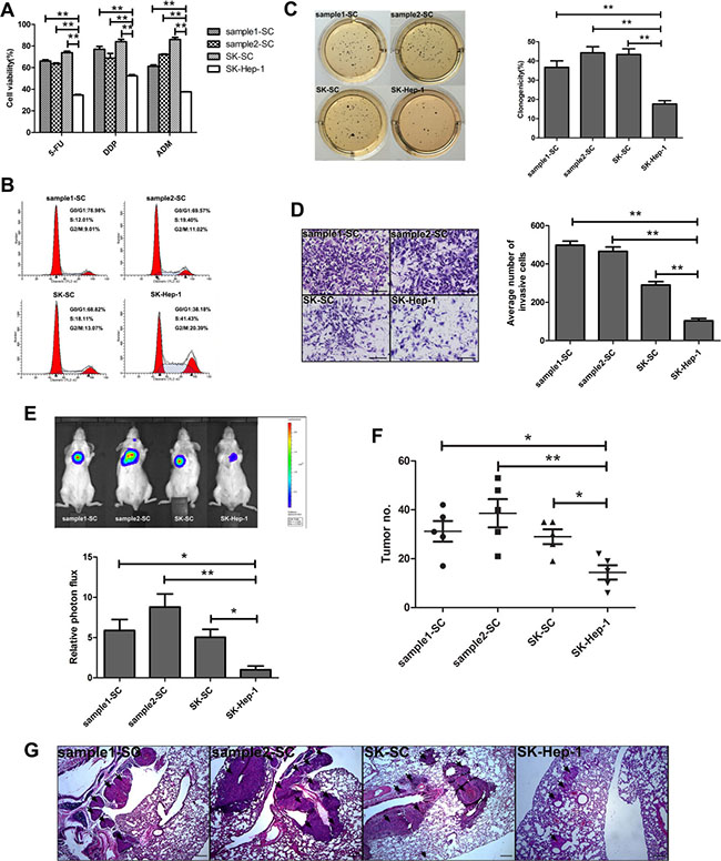 SCs derived from two HCC samples and SK-Hep-1 cells exhibit cancer stem cell-like properties.