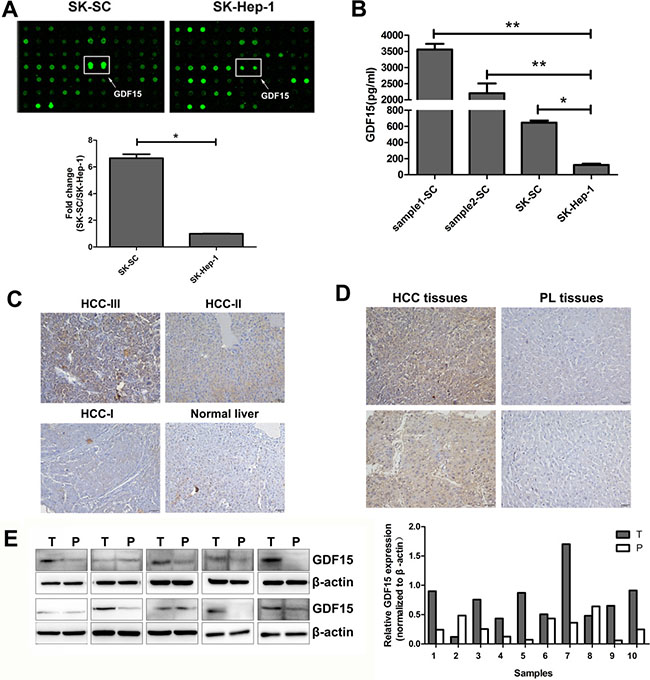 GDF15 is highly expressed in three groups of SCs and HCC tissues.