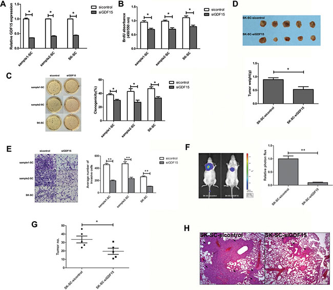 GDF15 knockdown inhibits the growth and metastasis of SCs in vitro and in vivo.