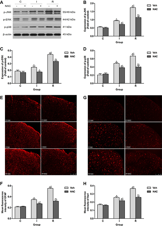 NAC inhibited remifentanil-induced spinal MAPK family phosphorylation and glial activation in ipsilateral spinal cord dorsal horn.