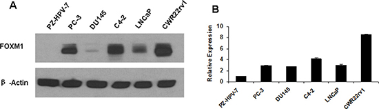 Gene expression of FOXM1 in human non-malignant prostate epithelial cells and prostate cancer cells.