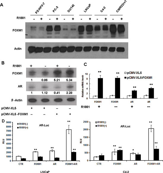 Androgen did not affect FOXM1 expression, while FOXM1 increased AR gene expression and AR promoter activity.