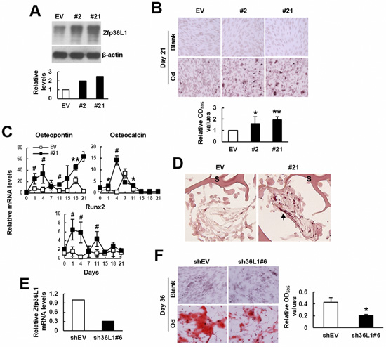 ZFP36L1 regulated osteoblastic differentiation of multipotent C3H10T1/2 cells.