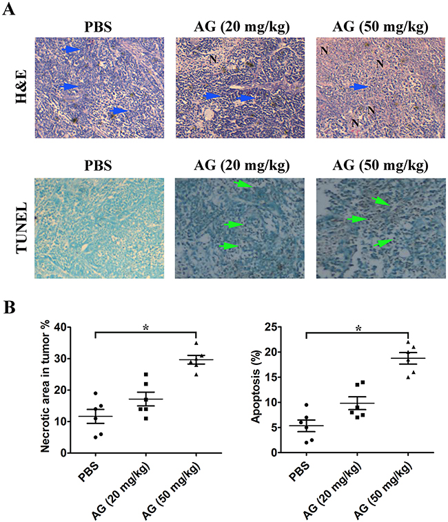AG treatment induces necrosis of tumor and promotes tumor cell apoptosis.
