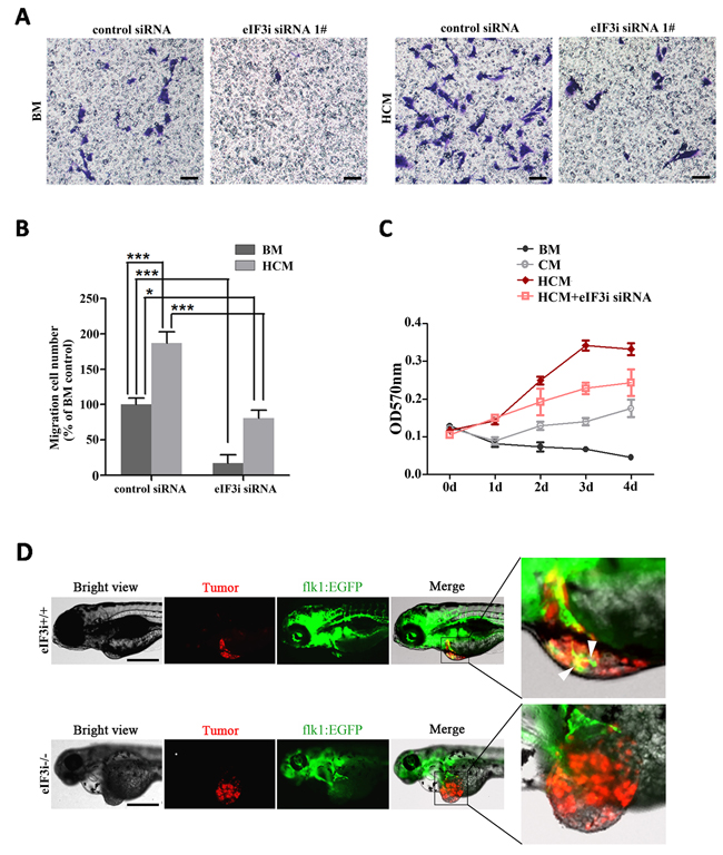 eIF3i is required for vascular endothelial cells to respond to tumor signals.