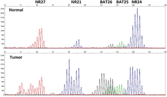 Representative image of MSI analysis.