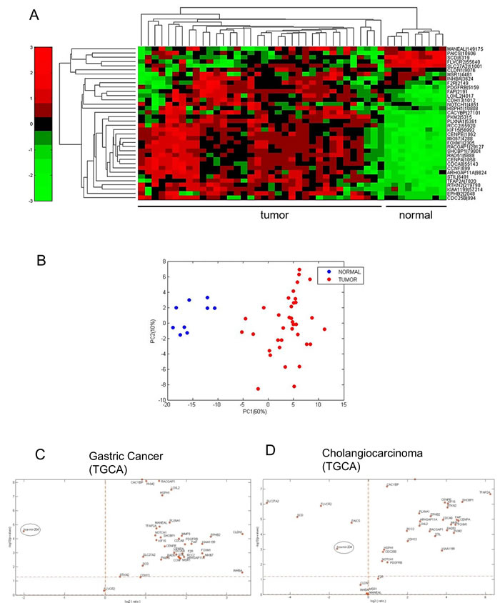 The miR-204 target gene signature is enriched in cholangiocarcinoma tissues