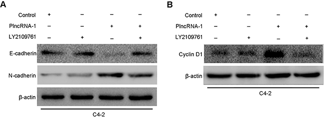 Effects of PlncRNA-1 overexpression and TGF-β1 inhibitor LY2109761 addition on EMT and CyclinD1 in C4-2 cells.