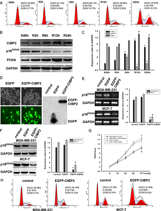 CtBP2 plays a proliferative role in breast cancer cells.