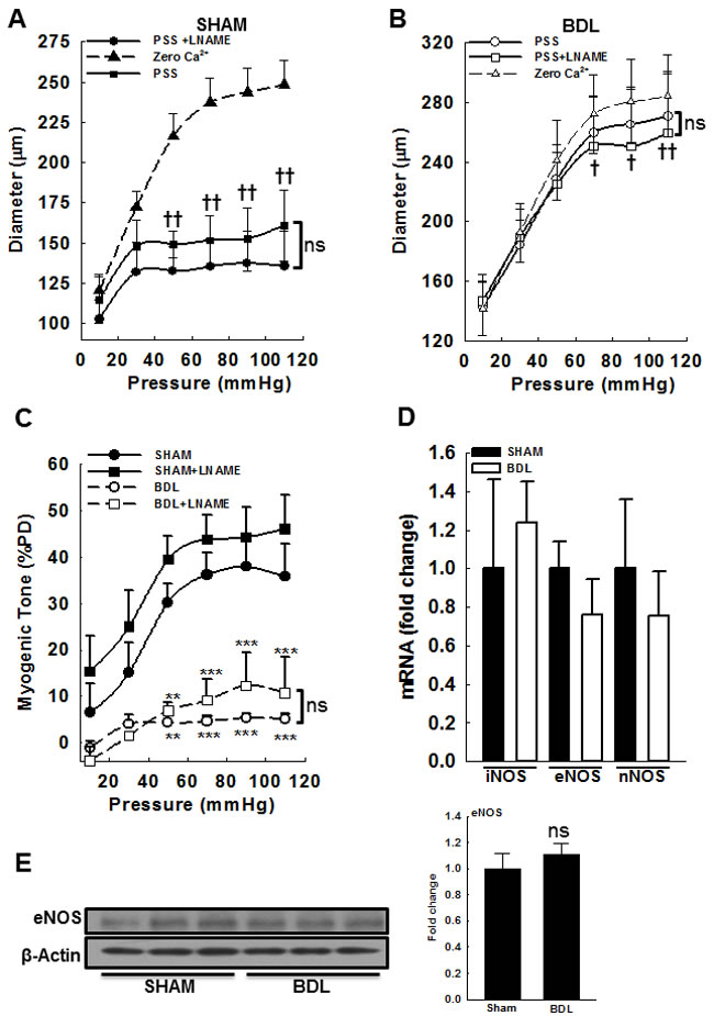 Effect of NOS inhibition on myogenic response in small mesenteric resistance arteries from SHAM- and BDL-rats.