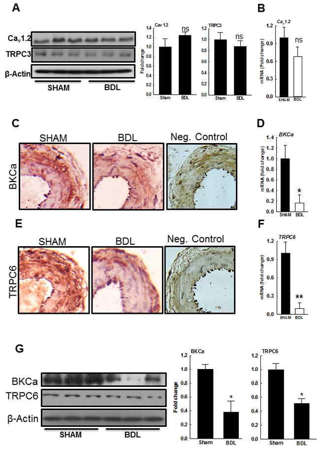 Expression of ion channels in small mesenteric resistance arteries from SHAM- and BDL-rats.