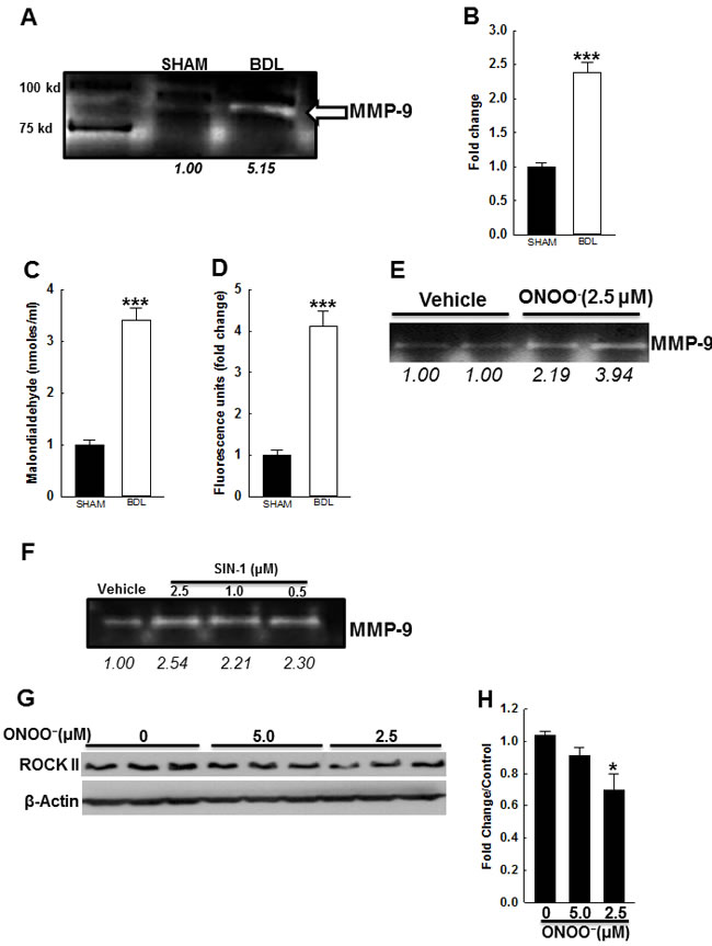 Effect of BDL and ROS on vascular MMP-9 activity.