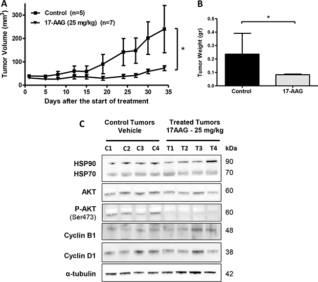 In vivo efficacy of 17-AAG on human GBC xenografts.