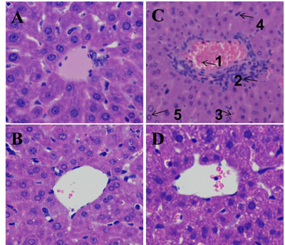 Effect of DIOS on liver tissue of AHF mice after administration of LPS/D-GalN endotoxin.