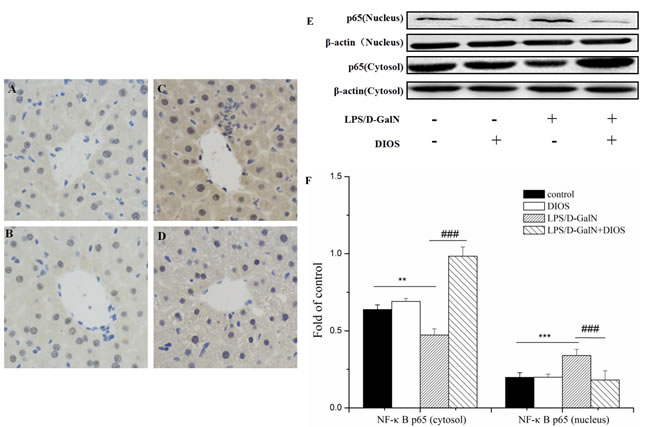Effect of DIOS on the expression and translocation of NF-κB(p65) after LPS/D-GalN administration.