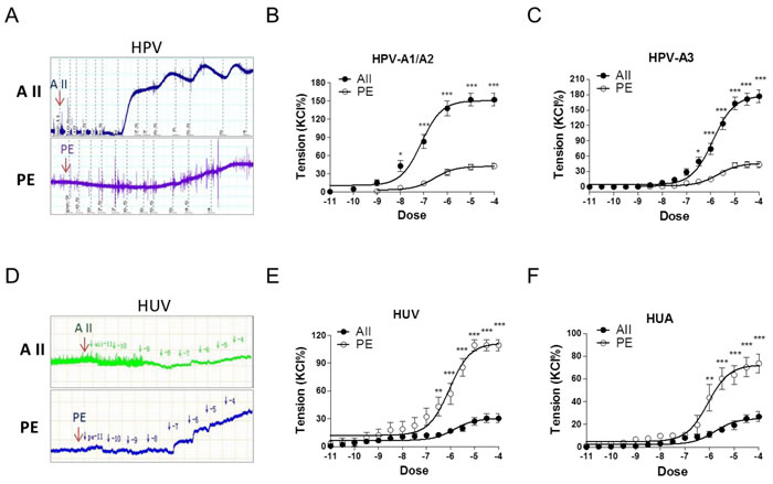 Angiotensin II and PE induced concentration-dependent vasoconstrictions in HPV, HUV, and HUA.