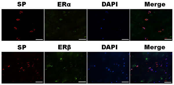Simultaneous expression of SP (red) and ERα (green) or ERβ (green) in the nucleus pulposus cells were detected under confocal microscopy.