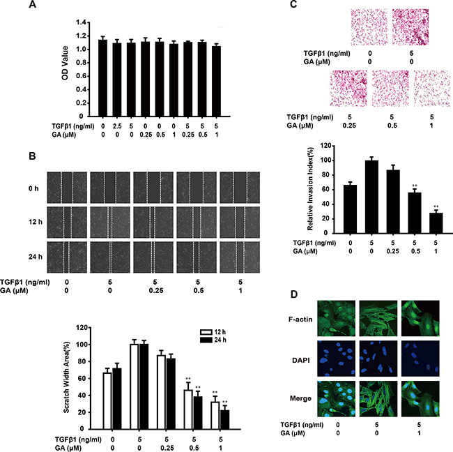 GA inhibits TGFβ1-induced migration and invasion of A549 cells in vitro.