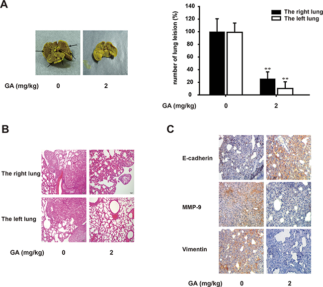 GA suppresses lung growth and metastasis of A549 cells in vivo.
