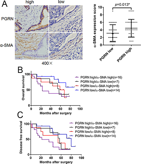 Survival analysis of PGRN and α-SMA expression in CRC tissues.