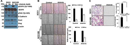 Afatinib inhibits Epithelial to Mesenchymal transition in HNSCC cells.