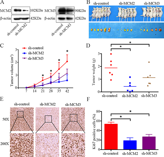 Knockdown of MCM2 or MCM3 inhibits osteosarcoma cell growth