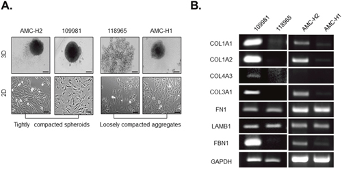 Collagen I expression and fibroblast-like morphology are correlated with compactness of spheroids generated by patient-derived primary HCCs.