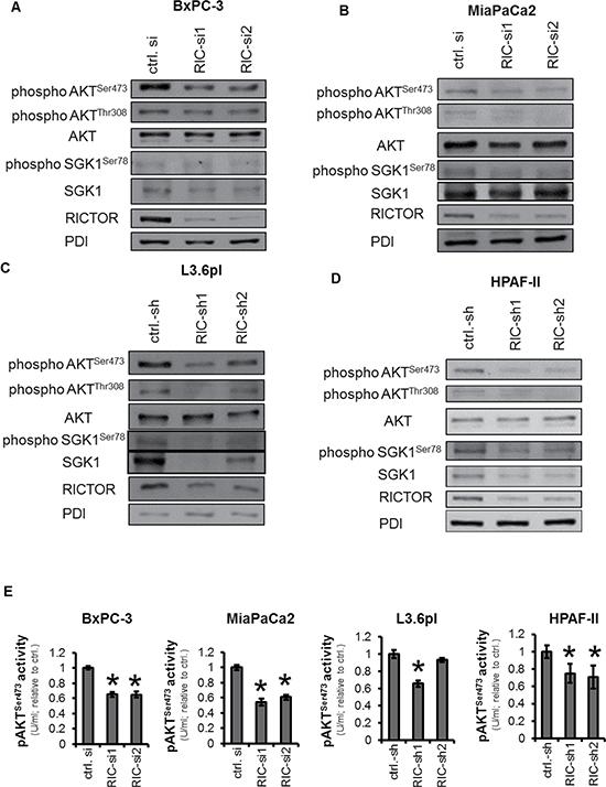 Impairment of AGC kinase upon RICTOR blockade.