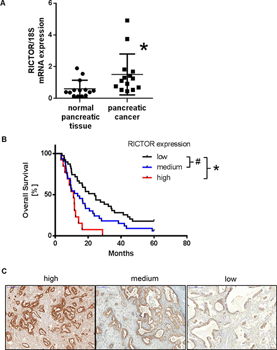 Expression of RICTOR in human pancreatic ductal adenocarcinoma.