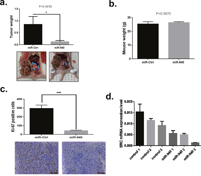 Overexpression of miRNA-940 significantly inhibits tumor growth in vivo.
