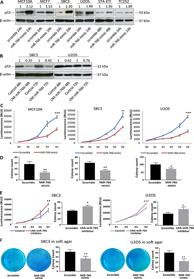 MiR-766 upregulates p53 expression and blocks cancer cell growth.