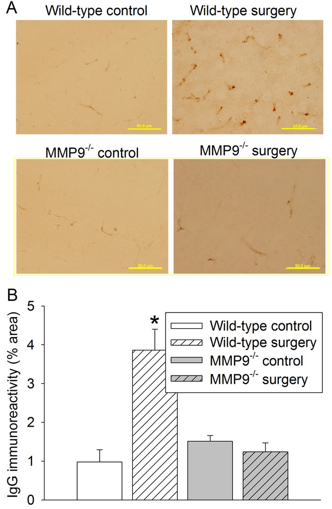 Effects of surgery on permeability of IgG into brain tissues in wild-type and MMP9