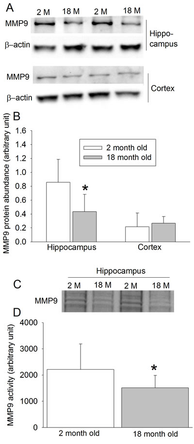 Effects of age on MMP9 protein expression and activity in wild-type mice.
