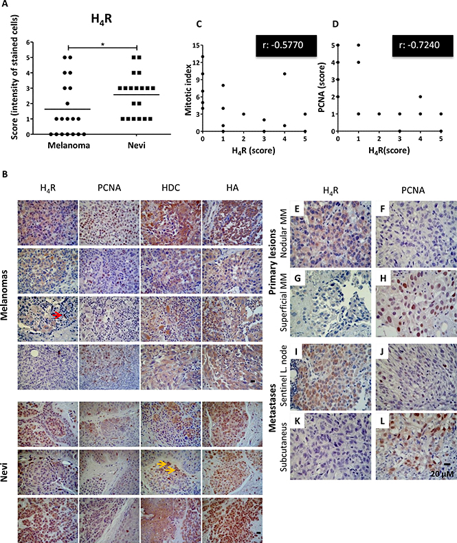Immunohistochemical detection of H4R, histamine, HDC and PCNA in benign and malignant lesions derived from human melanocytic tissues.