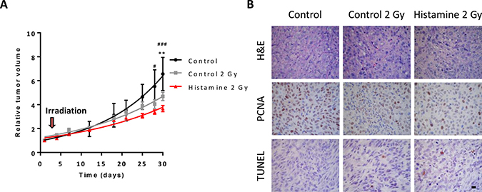 Combined effect of radiation and histamine on melanoma tumors induced in nude mice.