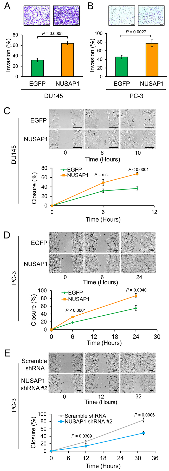 NUSAP1 overexpression increases invasion and migration of prostate cancer cells.